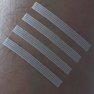 HypaCover Skin Closure Strips